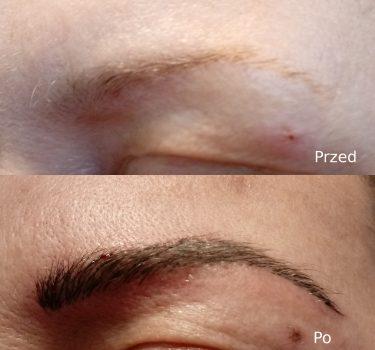 Przed i po 4