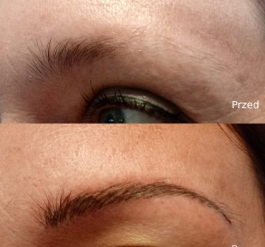 Przed i po 5