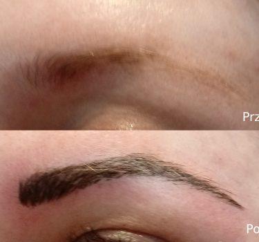 Przed i po 6