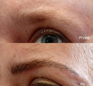 Przed i po 7